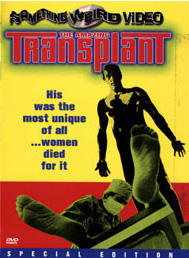 AMAZING TRANSPLANT, THE - Special Edition DVD